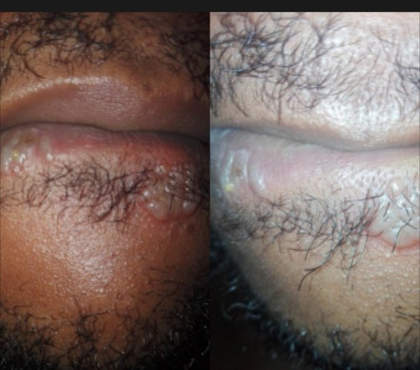 Nigerian Man Shares Photos Of His Blistered Mouth After Giving A Woman 'Head'