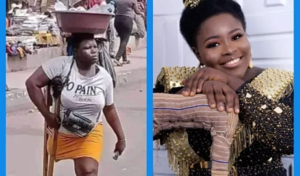 """""""Nobody Is Ugly"""". Nigerians React As Photos Of Pure Water Seller Amputee Are Shared On Instagram (See More Photos)"""