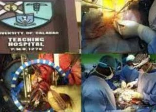 The University of Calabar Teaching Hospital has successfully performed its first open-heart surgery in the hospital